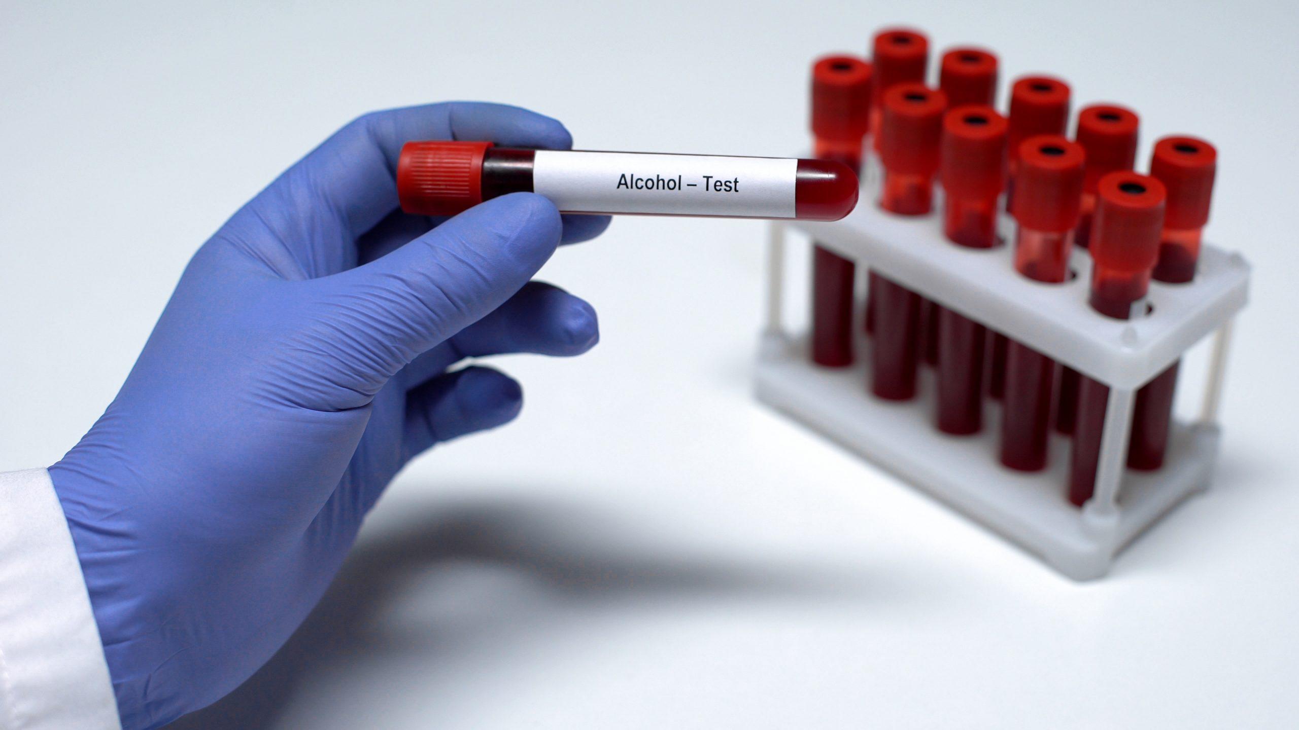 Drug & Alcohol Testing